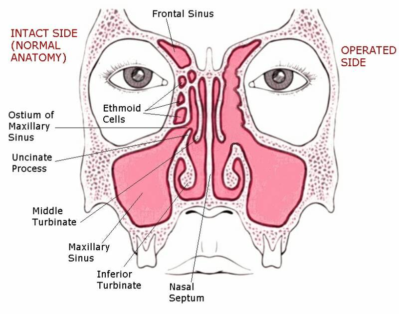 Dr Ananda | Functional Endoscopic Sinus Surgery