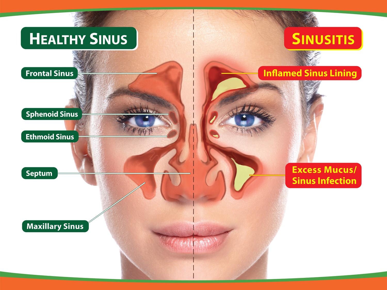 Dr Ananda | Sinusitis