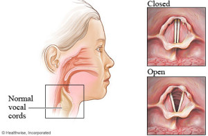 Vocal Fold Symptoms