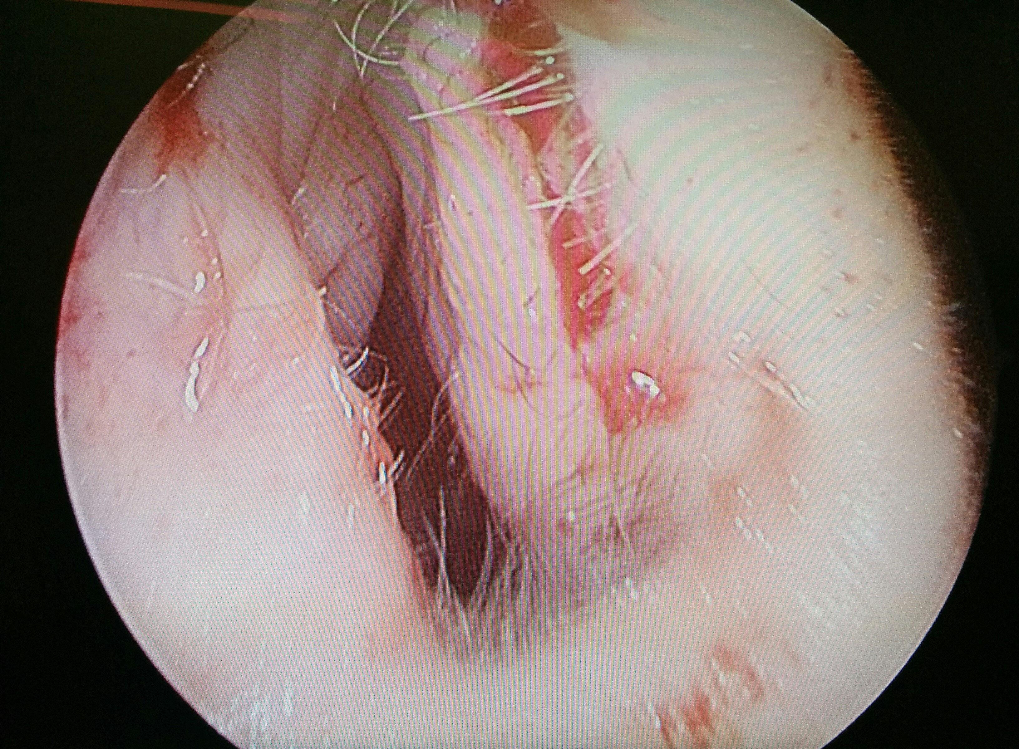 Opening of left nostril following reconstruction